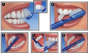 igiena orala pentru dinti